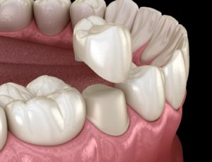 Porcelain dental crown in Trumbull being placed on tooth