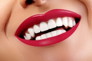 Close-up of woman's beautiful smile with veneers in Trumbull